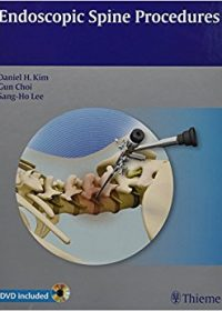Endoscopic Spine Procedures, 1e (Original Publisher PDF)