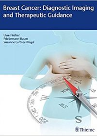 Breast Cancer: Diagnostic Imaging and Therapeutic Guidance, 1e (Original Publisher PDF)