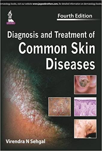 Diagnosis and Treatment of Common Skin Diseases, 4e (True PDF)