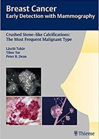 Breast Cancer: Early Detection with Mammography: Crushed Stone-like Calcifications: The Most Frequent Malignant Type, 1e (Original Publisher PDF)