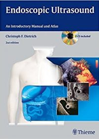 Endoscopic Ultrasound: An Introductory Manual and Atlas, 2e (Original Publisher PDF)