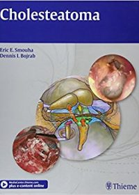 Cholesteatoma, 1e (Original Publisher PDF)