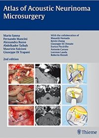 Atlas of Acoustic Neurinoma Microsurgery, 2e (Original Publisher PDF)