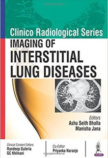 Clinico Radiological Series: Imaging of Interstitial Lung Diseases, 1e (True PDF)