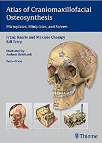 Atlas of Craniomaxillofacial Osteosynthesis: Microplates, Miniplates,and Screws, 2e (Original Publisher PDF)