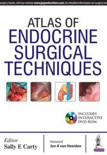 Atlas of Endocrine Surgical Techniques, 1e (True PDF)