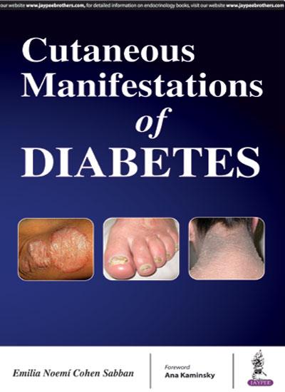 Cutaneous Manifestations of Diabetes, 1e (True PDF)
