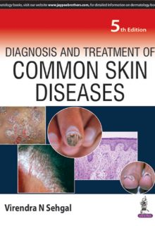 Diagnosis and Treatment of Common Skin Diseases, 5e (True PDF)