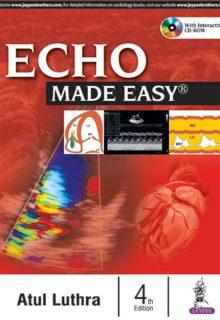 Echo Made Easy, 4e (True PDF)