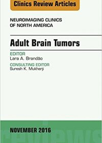Adult Brain Tumors, An Issue of Neuroimaging Clinics of North America, 1e (Original Publisher PDF)