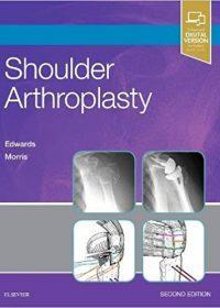 Shoulder Arthroplasty, 2e (Original Publisher PDF)