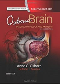 Osborn's Brain, 2e (Original Publisher PDF)