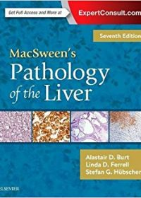 MacSween's Pathology of the Liver, 7e (Original Publisher PDF)