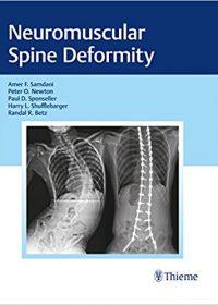 Neuromuscular Spine Deformity, 1e (Original Publisher PDF)