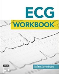 ECG Workbook, 1e (Original Publisher PDF)