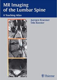 MR Imaging of the Lumbar Spine: A Teaching Atlas, 1e (Original Publisher PDF)