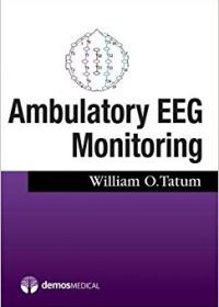 Ambulatory EEG, 1e (Original Publisher PDF)