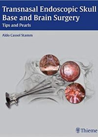 Transnasal Endoscopic Skull Base and Brain Surgery: Tips and Pearls, 1e (Original Publisher PDF)