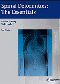 Spinal Deformities: The Essentials, 2e (Original Publisher PDF)