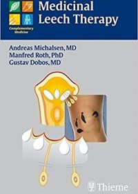 Medicinal Leech Therapy, 1e (Original Publisher PDF)