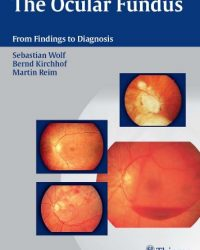 The Ocular Fundus: From Findings to Diagnosis, 1e (Original Publisher PDF)