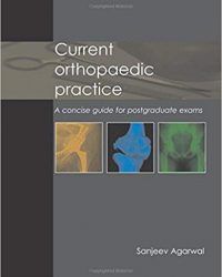 Current Orthopaedic Practice: A Concise Guide for Postgraduate Exams, 1e (Original Publisher PDF)