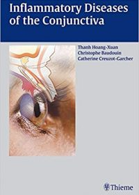 Inflammatory Diseases of the Conjuctiva, 1e (Original Publisher PDF)