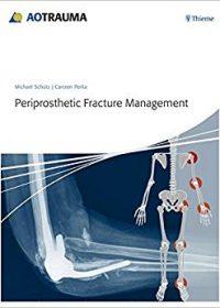 Periprosthetic Fracture Management, 1E (Original Publisher PDF)