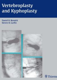 Vertebroplasty and Kyphoplasty, 1e (Original Publisher PDF)