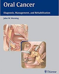 Oral Cancer: Diagnosis, Management, and Rehabilitation, 1e (Original Publisher PDF)