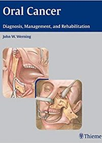 Oral Cancer: Diagnosis, Management, and Rehabilitation, 1e (Original Publisher PDF)