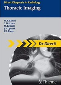 Thoracic Imaging (Direct Diagnosis in Radiology), 1e (Original Publisher PDF)