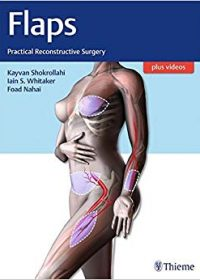 Flaps: Practical Reconstructive Surgery, 1e (Original Publisher PDF)