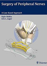 Surgery of Peripheral Nerves, 1e (Original Publisher PDF)