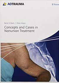Concepts and Cases in Nonunion Treatment, 1e (Original Publisher PDF)