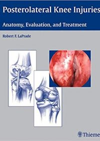 Posterolateral Knee Injuries: Anatomy, Evaluation, and Treatment, 1e (Original Publisher PDF)