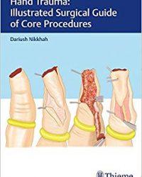 Hand Trauma: Illustrated Surgical Guide of Core Procedures, 1e (Original Publisher PDF)