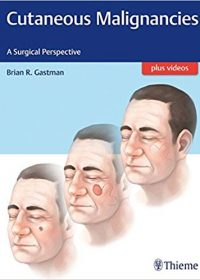 Cutaneous Malignancies: A Surgical Perspective, 1e (Original Publisher PDF)