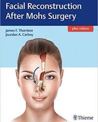 Facial Reconstruction After Mohs Surgery, 1e (Original Publisher PDF)