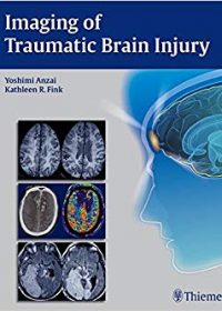 Imaging of Traumatic Brain Injury, 1e (Original Publisher PDF)