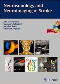 Neurosonology and Neuroimaging of Stroke, 1e (Original Publisher PDF)