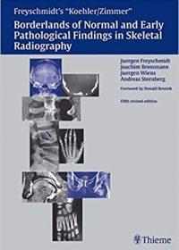 Koehler/Zimmer's Borderlands of Normal and Early Pathological Findings in Skeletal Radiography, 5e (Original Publisher PDF)