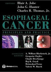 Esophageal Cancer: Principles and Practice, 1e (Original Publisher PDF)