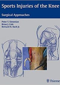 Sports Injuries of the Knee: Surgical Approaches, 1e (Original Publisher PDF)