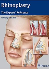 Rhinoplasty: The Experts' Reference, 1e (Original Publisher PDF)
