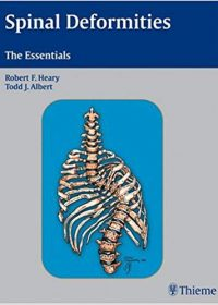 Spinal Deformities: The Essentials, 1e (Original Publisher PDF)
