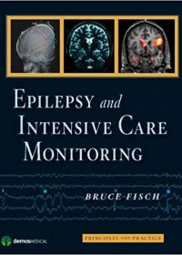 Epilepsy and Intensive Care Monitoring: Principles and Practice, 1e (Original Publisher PDF)