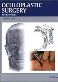 Oculoplastic Surgery: The Essentials, 1e (Original Publisher PDF)