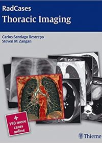 Radcases Thoracic Imaging, 1e (Original Publisher PDF)