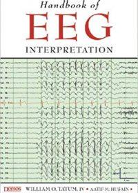 Handbook of Eeg Interpretation, 1e (Original Publisher PDF)